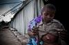 A shrapnel-wounded child at AMISOM Camp Halane field hospital.