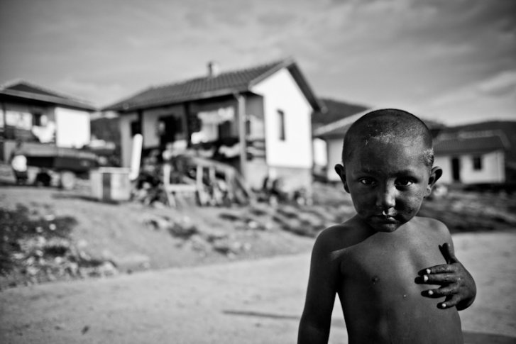 Kosovar refugee child in Montenegro